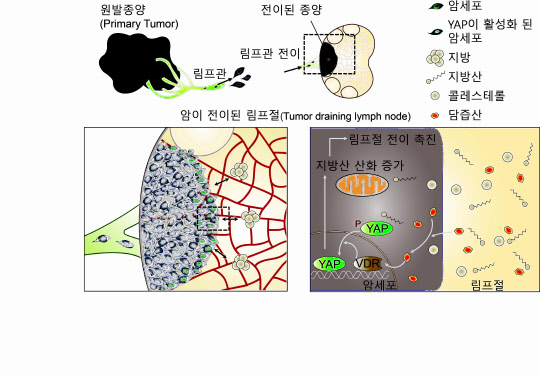 지방산 억제로 암세포 '림프절 전이' 막는다